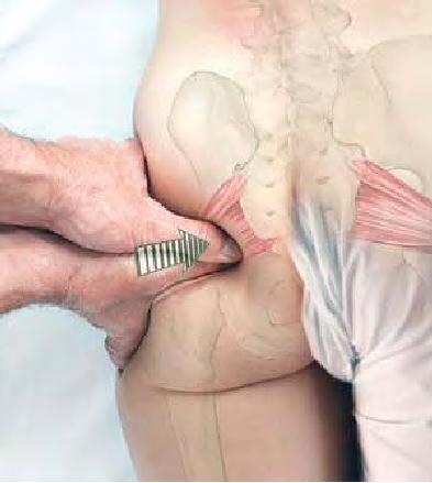 Localizzazione dolore nella sindrome del piriforme