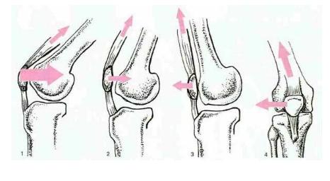 sindrome-femoro-rotulea-ciclismo-5